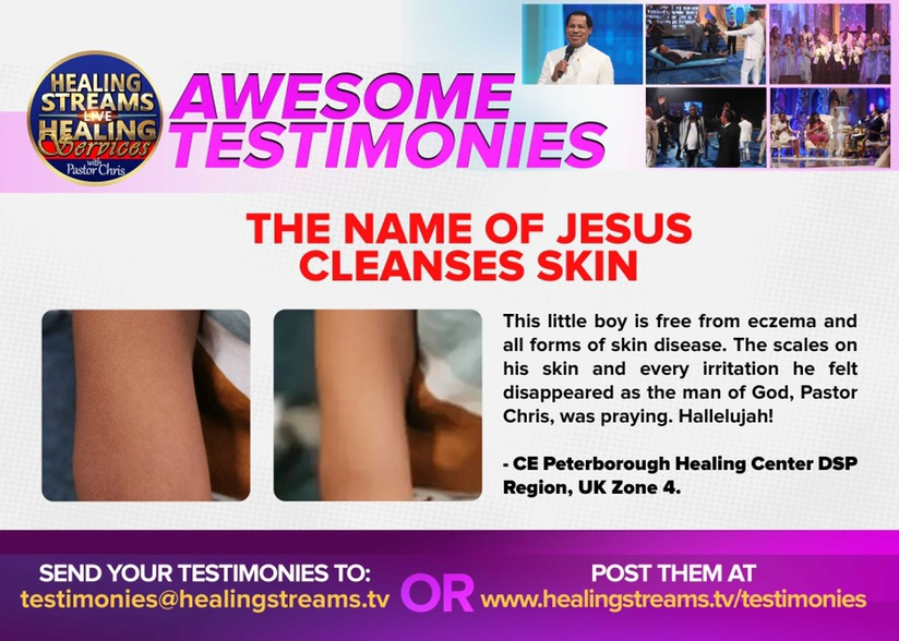 TESTIMONY FROM HEALING STREAMS LIVE
