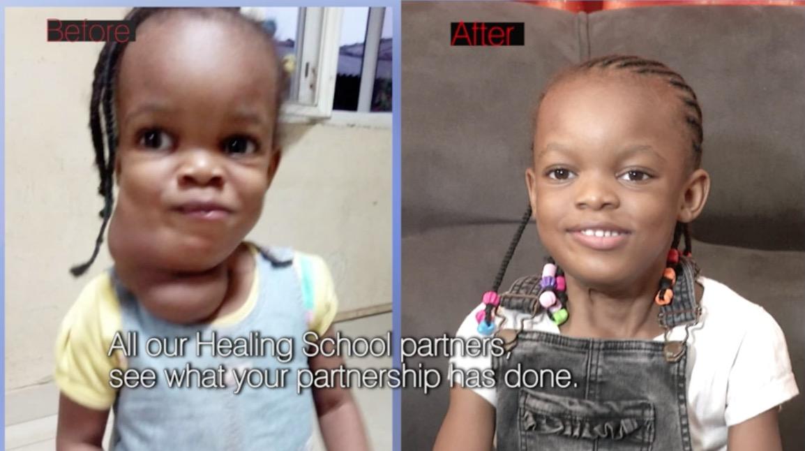 Healing Streams Testimony   Child